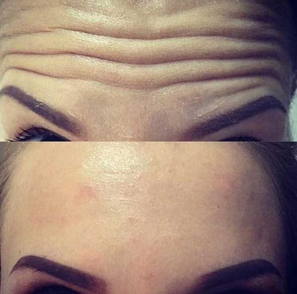 Before and after Anti-Wrinkle Injection